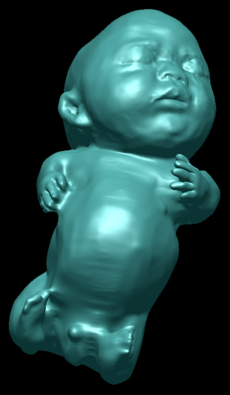 the-fetus-project-by-jorge-lopes-dos-santos-24.jpg