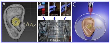 3D-printed bionic ear