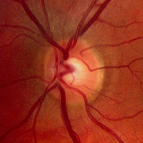 Microscopic image of a retina
