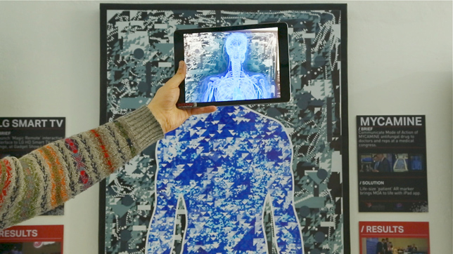 Inition medical augmented reality installation