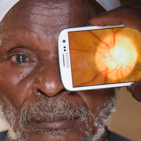 Peek smartphone adapter and app scans eyes to help combat blindness