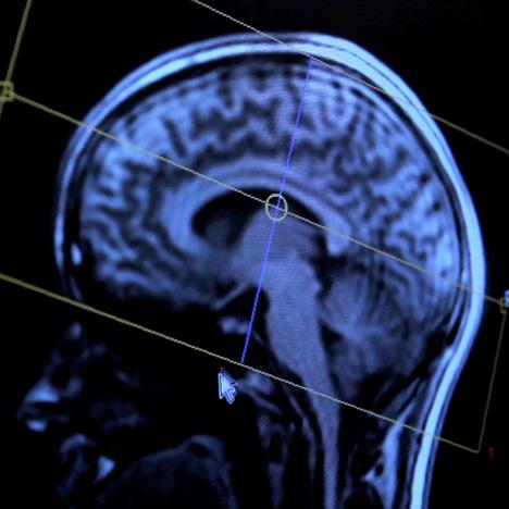 Brain Manufacturing by Merel Bekking