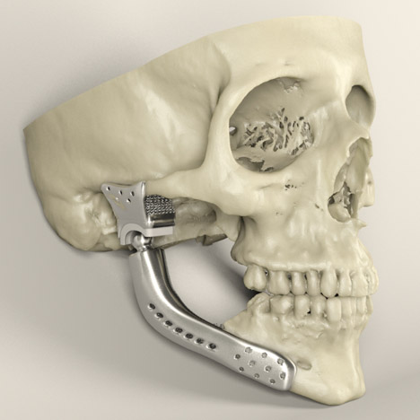 Custom-fit 3D-printed medical implant for bone reconstruction by Sebastiaan Deviaene