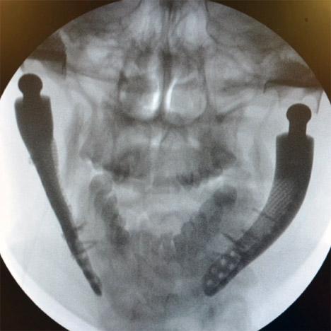 Custom-fit 3D-printed medical implant for bone reconstruction by Sebastiaan Deviaene