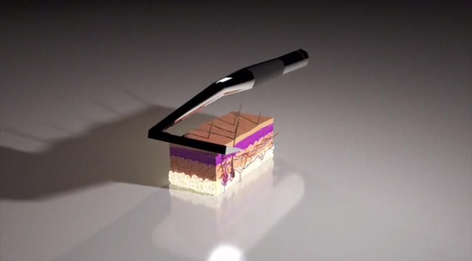 Skarp laser razor