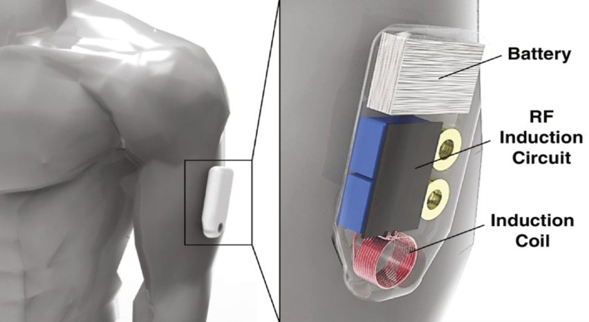 Wearable Opioid Antidote Device by Purdue University researchers