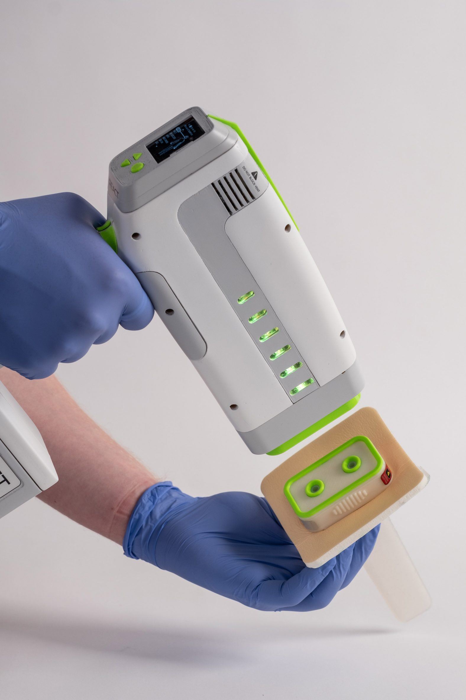 Device to reduce blood loss from knife wounds